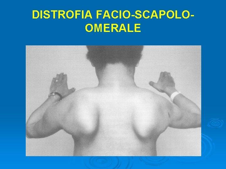 DISTROFIA FACIO-SCAPOLOOMERALE