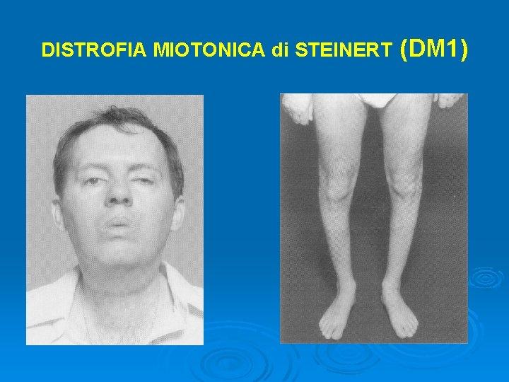 DISTROFIA MIOTONICA di STEINERT (DM 1)