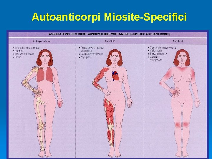 Autoanticorpi Miosite-Specifici