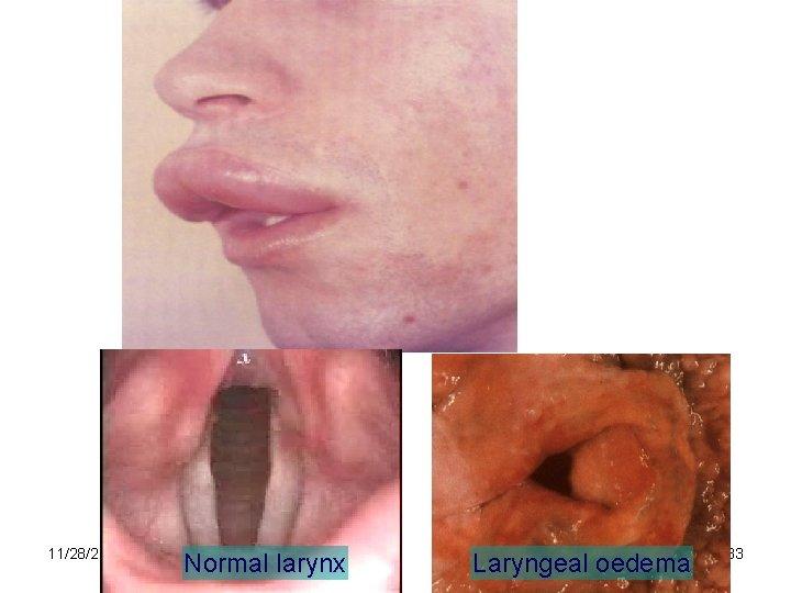 11/28/2020 Normal larynx Laryngeal oedema 33