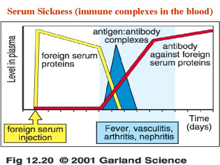 Serum Sickness (immune complexes in the blood). 11/28/2020 40