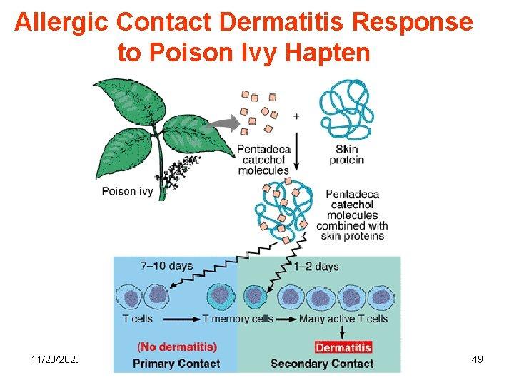 Allergic Contact Dermatitis Response to Poison Ivy Hapten 11/28/2020 49