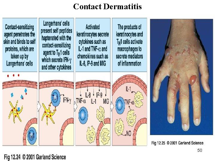 Contact Dermatitis 11/28/2020 50