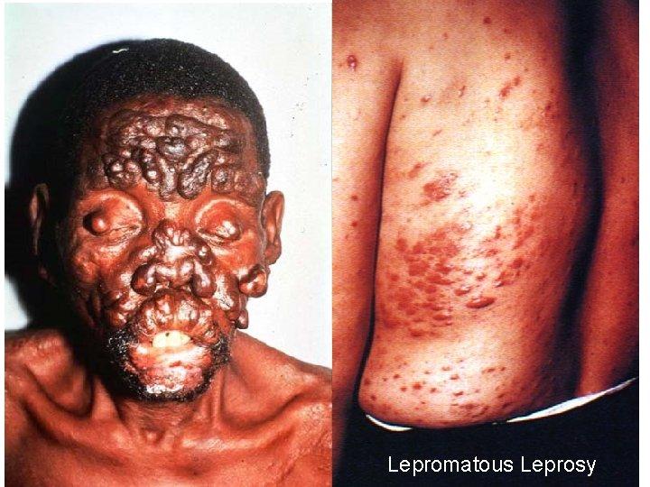 11/28/2020 Lepromatous Leprosy 55