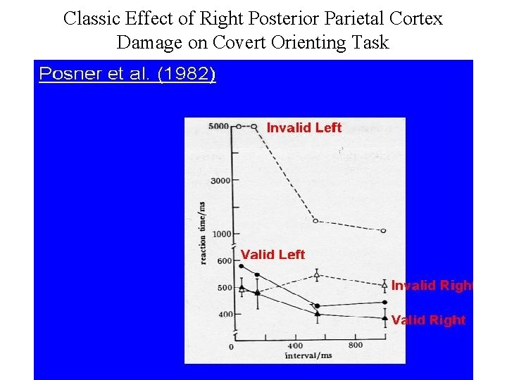 Classic Effect of Right Posterior Parietal Cortex Damage on Covert Orienting Task