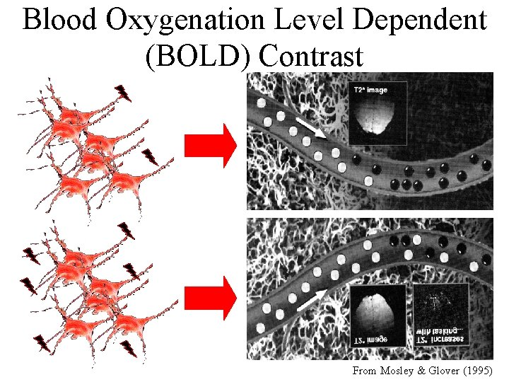 Blood Oxygenation Level Dependent (BOLD) Contrast From Mosley & Glover (1995)