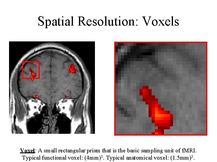Spatial Resolution: Voxels Voxel: A small rectangular prism that is the basic sampling unit