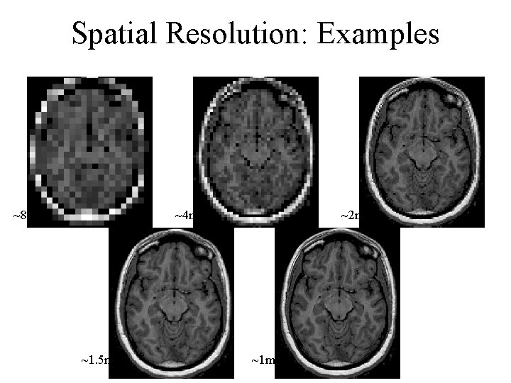 Spatial Resolution: Examples ~8 mm 2 ~4 mm 2 ~1. 5 mm 2 ~2
