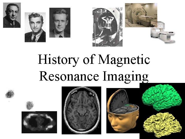 History of Magnetic Resonance Imaging