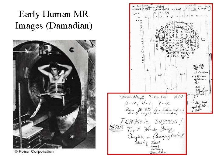 Early Human MR Images (Damadian)