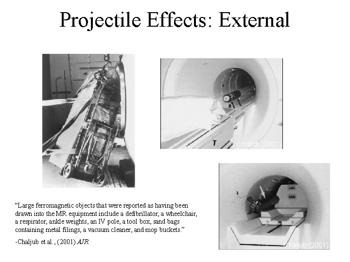"""Projectile Effects: External Chaljub (2001) Schenck (1996) """"Large ferromagnetic objects that were reported as"""