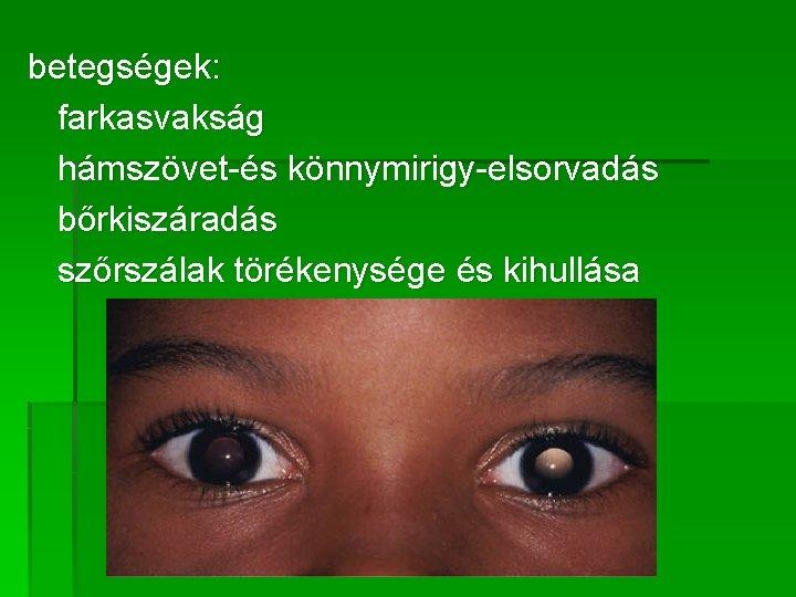 látásátviteli tényező)