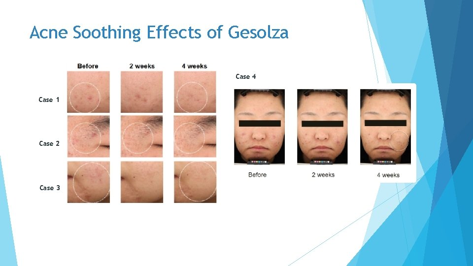 Acne Soothing Effects of Gesolza Case 4 Case 1 Case 2 Case 3