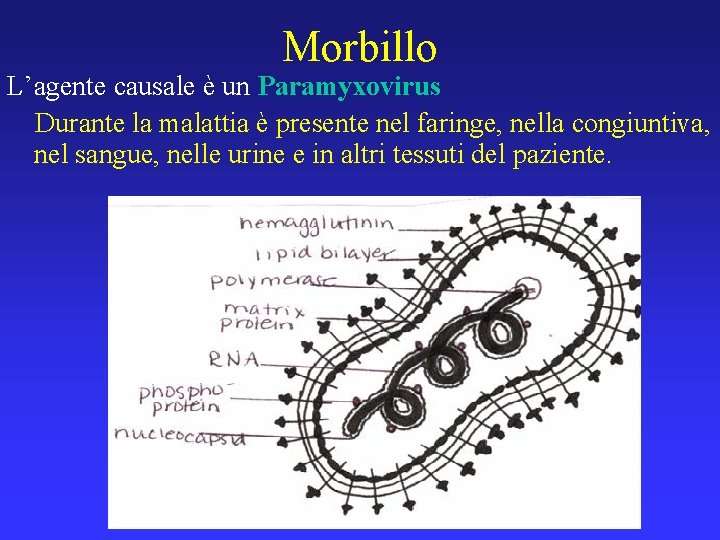 Morbillo L'agente causale è un Paramyxovirus Durante la malattia è presente nel faringe, nella