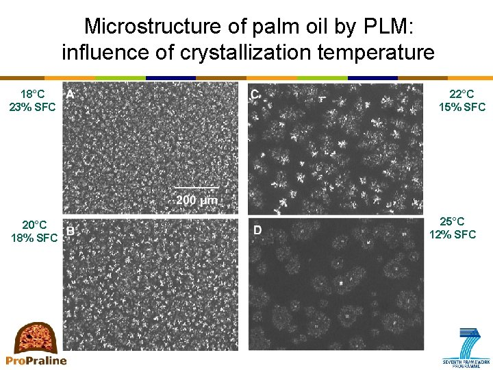 Microstructure of palm oil by PLM: influence of crystallization temperature 18°C 23% SFC 20°C