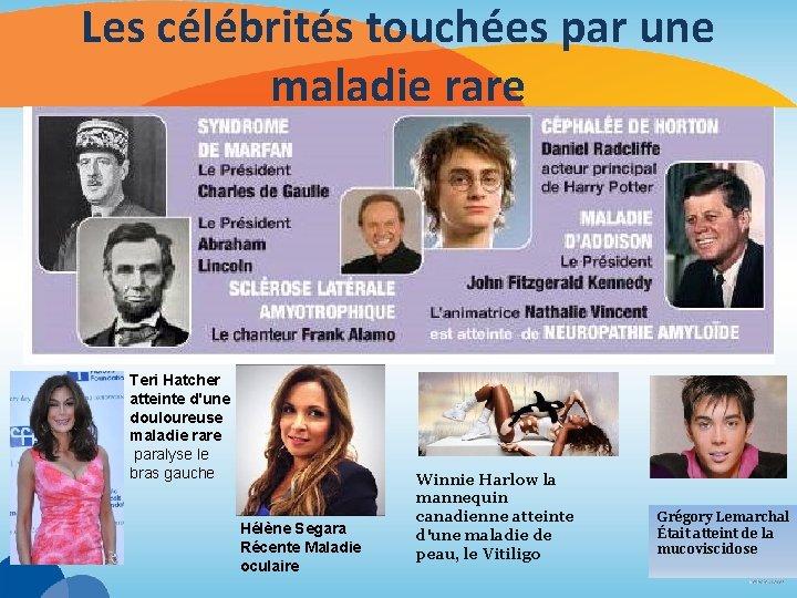 Les célébrités touchées par une maladie rare Teri Hatcher atteinte d'une douloureuse maladie rare