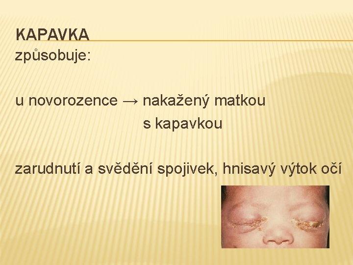KAPAVKA způsobuje: u novorozence → nakažený matkou s kapavkou zarudnutí a svědění spojivek, hnisavý