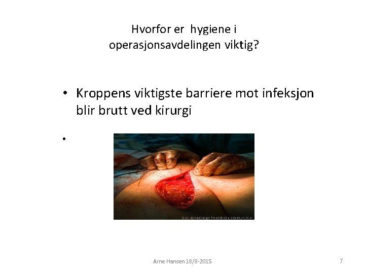 Hvorfor er hygiene i operasjonsavdelingen viktig? • Kroppens viktigste barriere mot infeksjon blir brutt