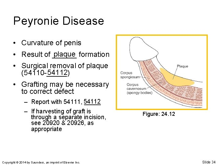 Peyronie Disease • Curvature of penis plaque formation • Result of ______ • Surgical