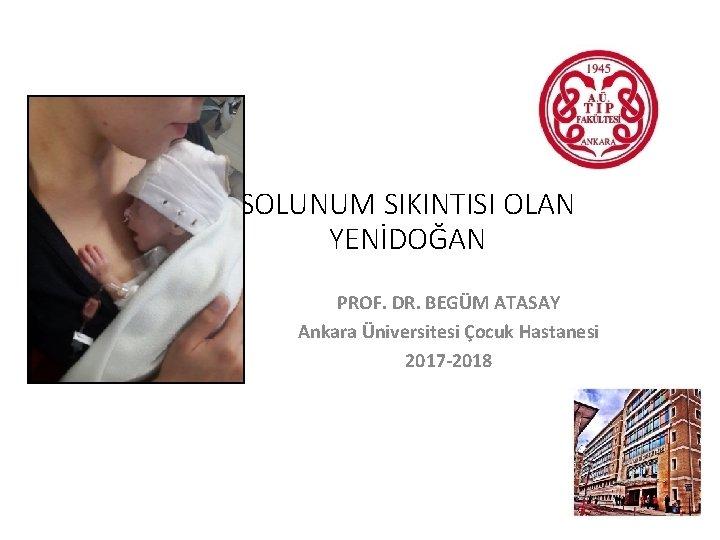 SOLUNUM SIKINTISI OLAN YENİDOĞAN PROF. DR. BEGÜM ATASAY Ankara Üniversitesi Çocuk Hastanesi 2017 -2018