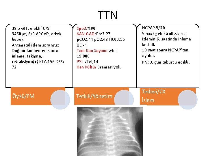TTN 38, 5 GH , elektif C/S 3450 gr, 8/9 APGAR, erkek bebek Antenatal