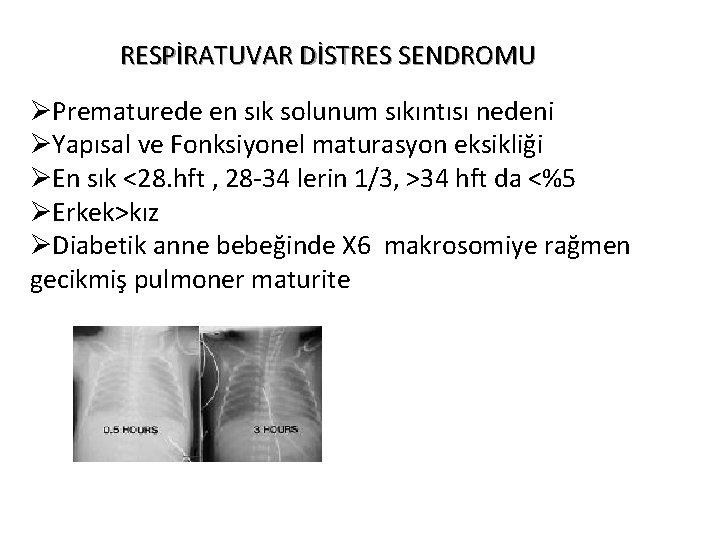 RESPİRATUVAR DİSTRES SENDROMU ØPrematurede en sık solunum sıkıntısı nedeni ØYapısal ve Fonksiyonel maturasyon eksikliği