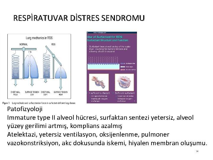 RESPİRATUVAR DİSTRES SENDROMU Patofizyoloji Immature type II alveol hücresi, surfaktan sentezi yetersiz, alveol yüzey