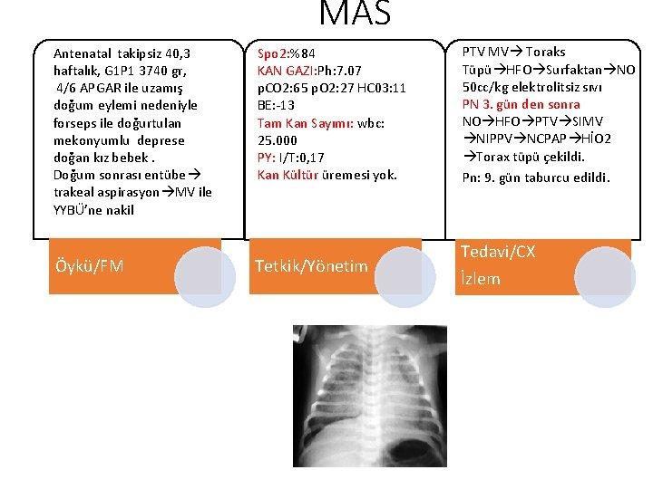 MAS Antenatal takipsiz 40, 3 haftalık, G 1 P 1 3740 gr, 4/6 APGAR