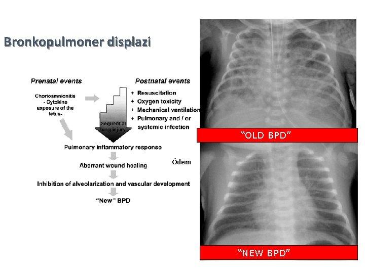 "Bronkopulmoner displazi ""OLD BPD"" Ödem ""NEW BPD"" 32"