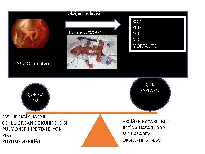Oksijen tedavisi Ex-utero %98 O 2 ROP BPD IVH NEC MORTALİTE %70 O 2