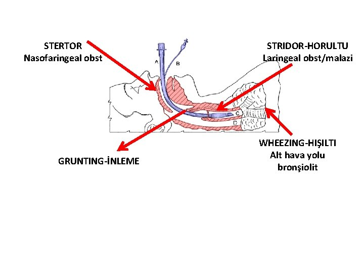 STERTOR Nasofaringeal obst GRUNTING-İNLEME STRIDOR-HORULTU Laringeal obst/malazi WHEEZING-HIŞILTI Alt hava yolu bronşiolit