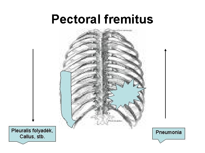 Pectoral fremitus Pleuralis folyadék, Callus, stb. Pneumonia