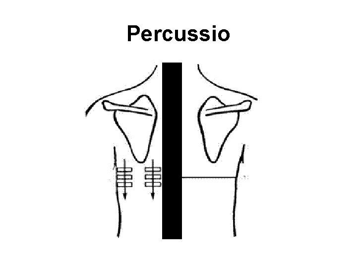 Percussio