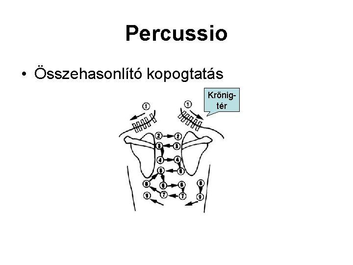 Percussio • Összehasonlító kopogtatás Krőnigtér