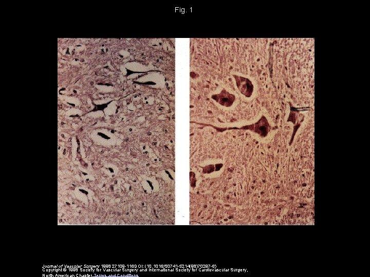 Fig. 1 Journal of Vascular Surgery 1998 27109 -116 DOI: (10. 1016/S 0741 -5214(98)70297