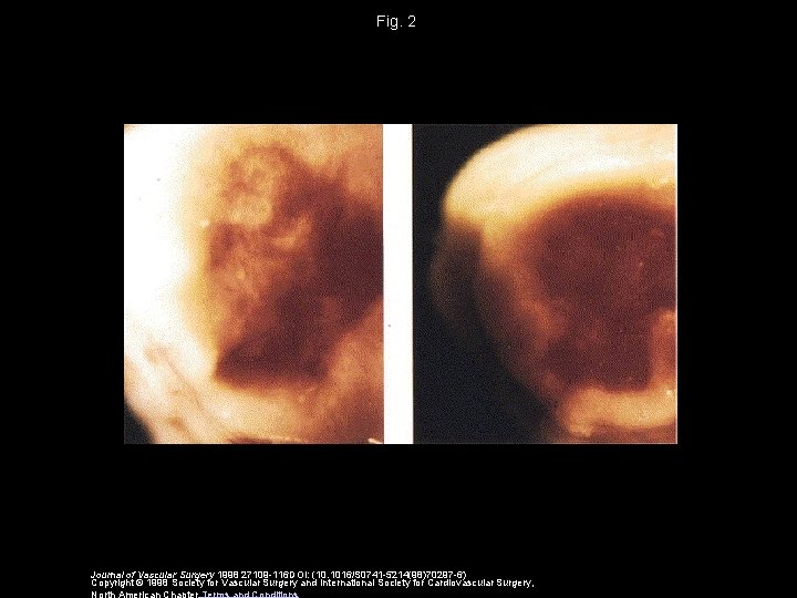 Fig. 2 Journal of Vascular Surgery 1998 27109 -116 DOI: (10. 1016/S 0741 -5214(98)70297