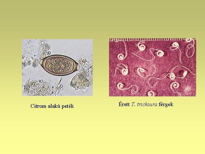 melyik szervben él a felnőtt ascaris