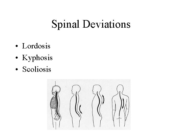 Spinal Deviations • Lordosis • Kyphosis • Scoliosis
