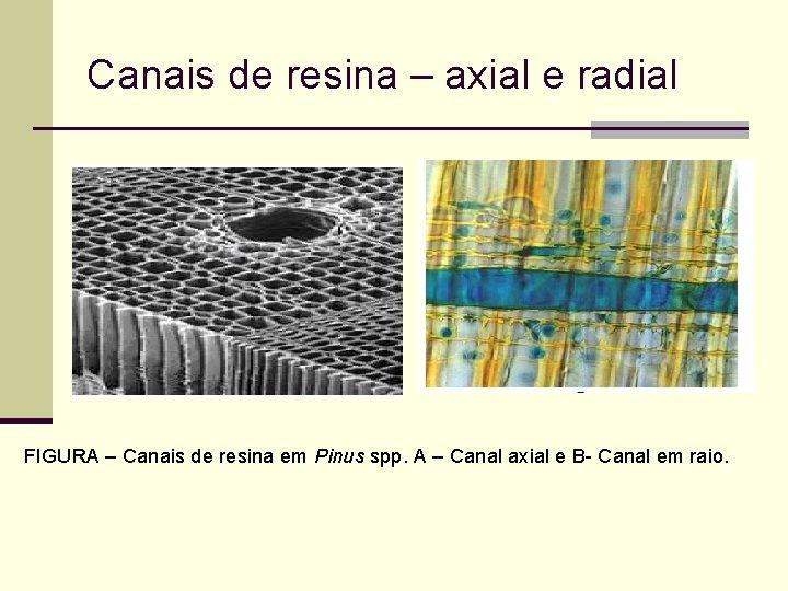 Canais de resina – axial e radial FIGURA – Canais de resina em Pinus