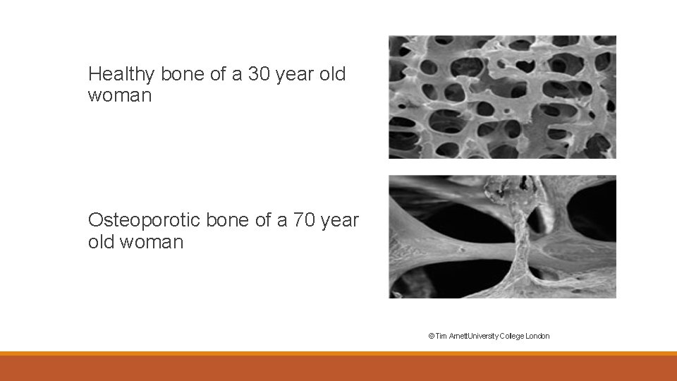 Healthy bone of a 30 year old woman Osteoporotic bone of a 70