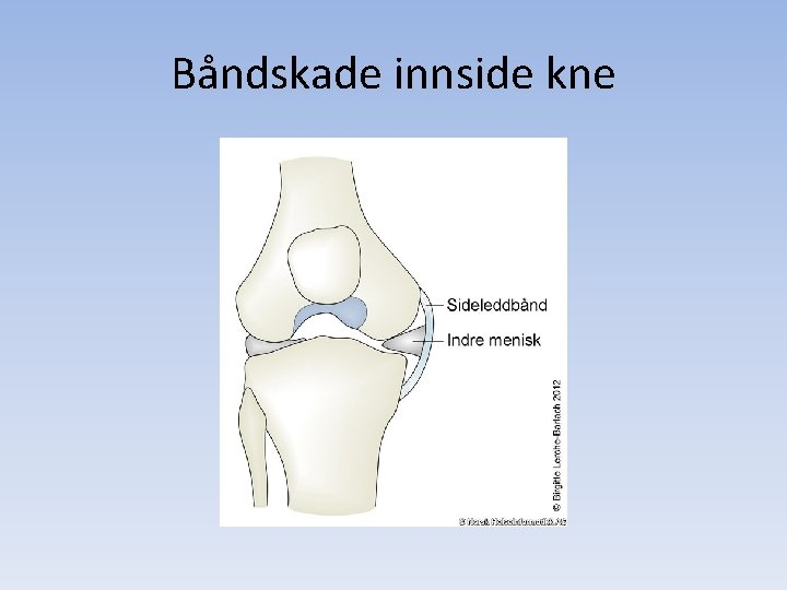 Båndskade innside kne