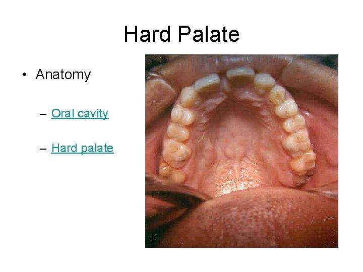Hard Palate • Anatomy – Oral cavity – Hard palate