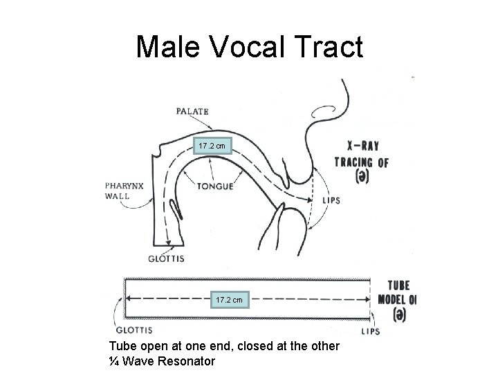 Male Vocal Tract 17. 2 cm Tube open at one end, closed at the