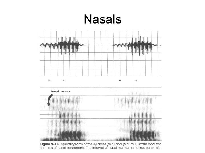 Nasals