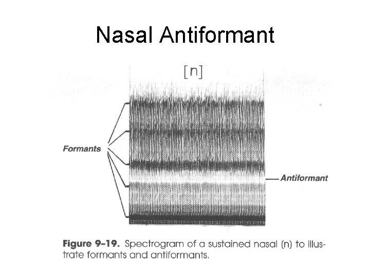 Nasal Antiformant