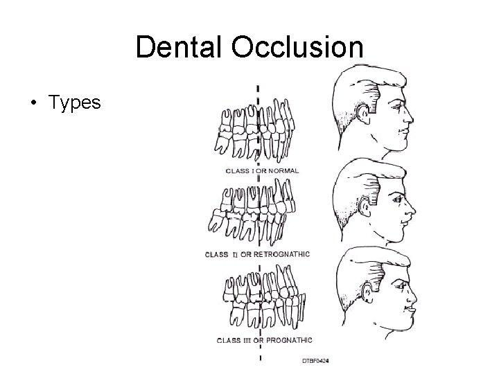 Dental Occlusion • Types