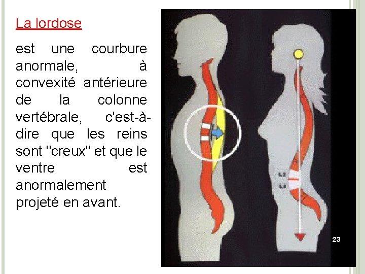 La lordose est une courbure anormale, à convexité antérieure de la colonne vertébrale, c'est-àdire
