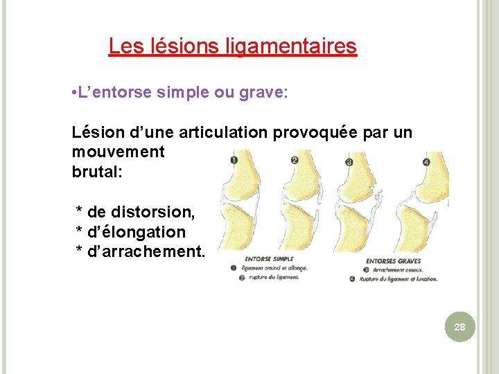 Les lésions ligamentaires • L'entorse simple ou grave: Lésion d'une articulation provoquée par un