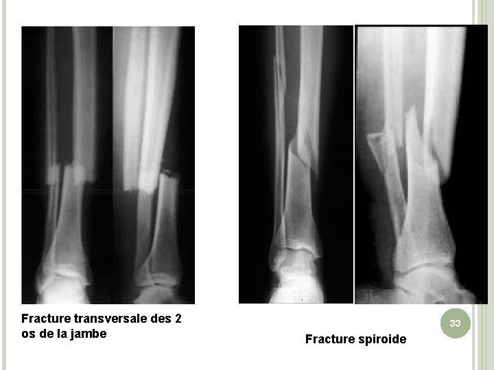 Fracture transversale des 2 os de la jambe 33 Fracture spiroide