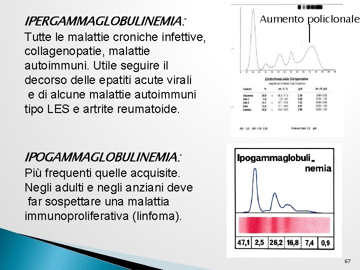 IPERGAMMAGLOBULINEMIA: Aumento policlonale Tutte le malattie croniche infettive, collagenopatie, malattie autoimmuni. Utile seguire il